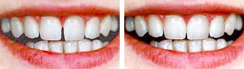 Ästhetische Zahnmedizin - Veneers
