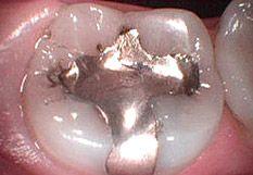 Zahnarzt Mit Lachgassedierung In München Intraoral Kamera