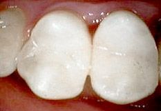 Konservierende Zahnmedizin